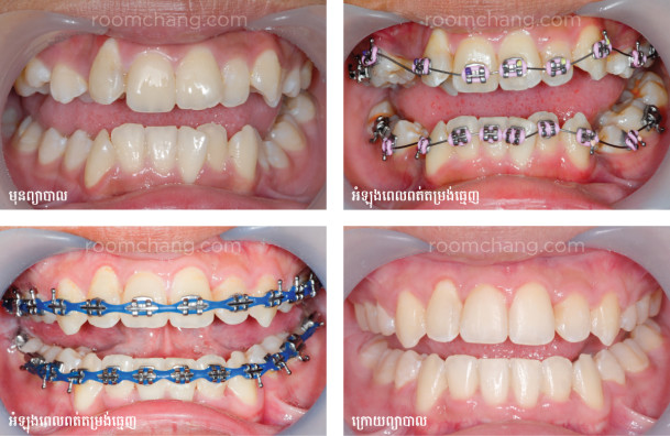 Before and After Orthodontic Treatment_Roomchang Dental Hospital