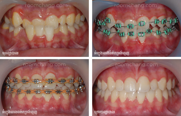 Before and after_Orthodontic Treatment(Roomchang Dental Hospital)-01
