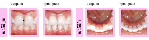case-in-ca_roomchang-dental