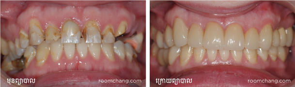 Dental-Full-mouth-reconstruction_dental-implant-and-crown-@roomchang-dental-hospital