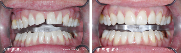 Dental-Veneer-at-Roomchang-dental-hospital