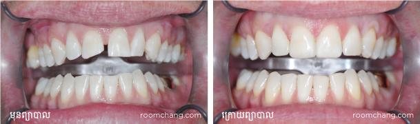 Dental-Veneer-at-Roomchang-dental-hospital