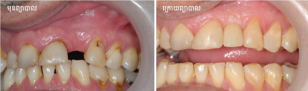 Dental-implant_single-tooth