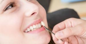 dental-veneer_dental-crown_at-roomchang-dental