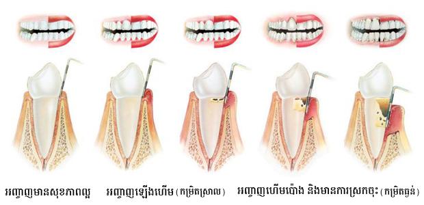 gingivitis-vs-periodontitis_kh