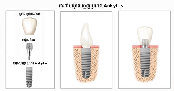 Implant_KH