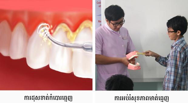roomchang-dental_service