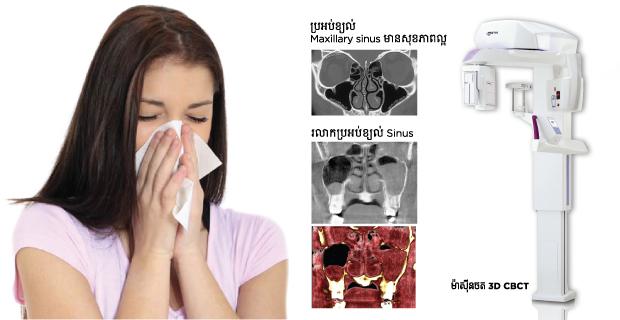 3D CBCT_Sinusitis_Roomchangdental